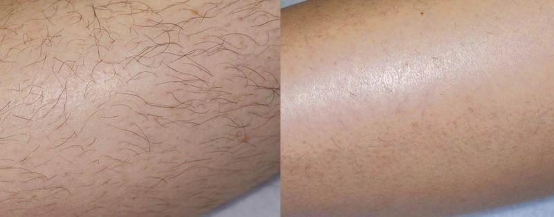 Лазерная эпиляция, результат до и после